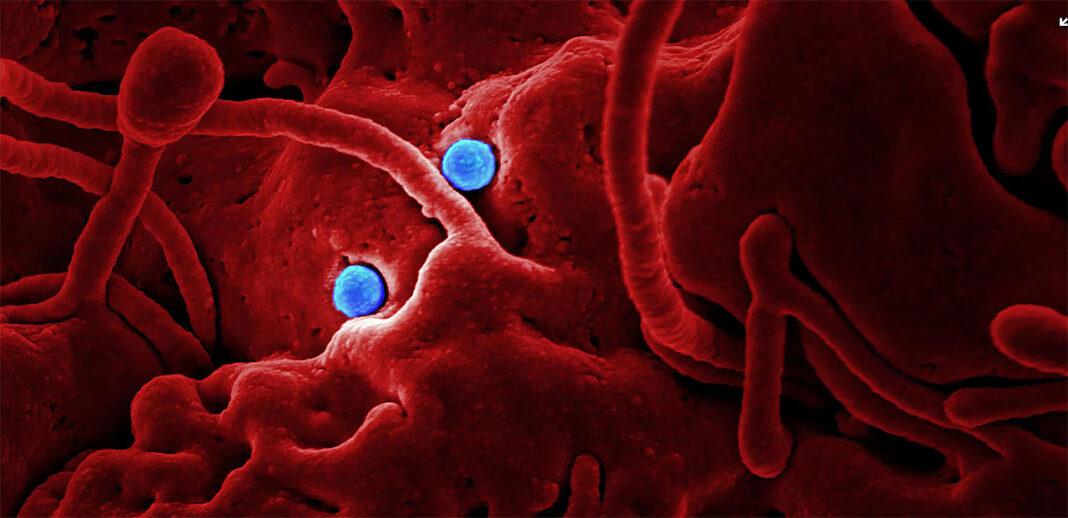 Corona Viruset i Norge og Spania